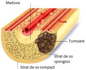 cancer osos la copii hpv virus mannen behandeling