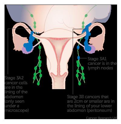 ovarian cancer is treatable papiloma escamoso en boca tratamiento