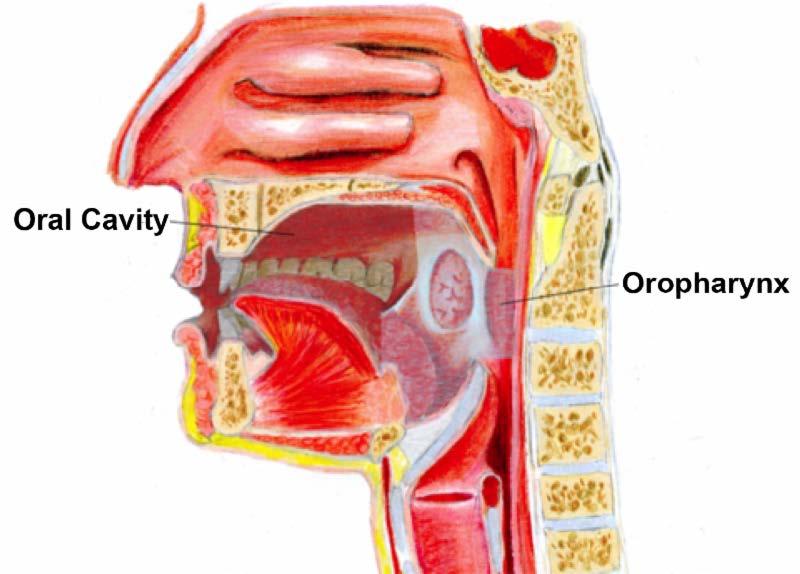 metastatic hpv throat cancer