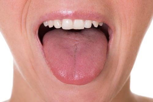 papilloma lingua cause