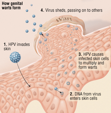 human papillomavirus and plantar warts