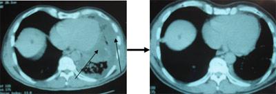cancer pulmonar estadio iv esperanza de vida