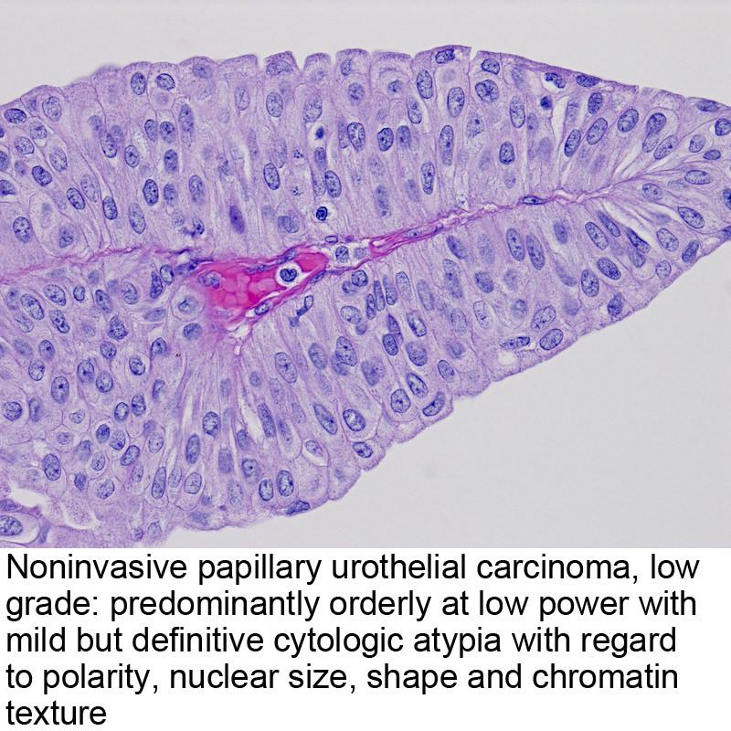 papillary urothelial carcinoma invasive icd 10 anemia 2