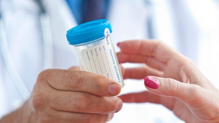 pancreatic cancer urine ovarian cancer jaundice