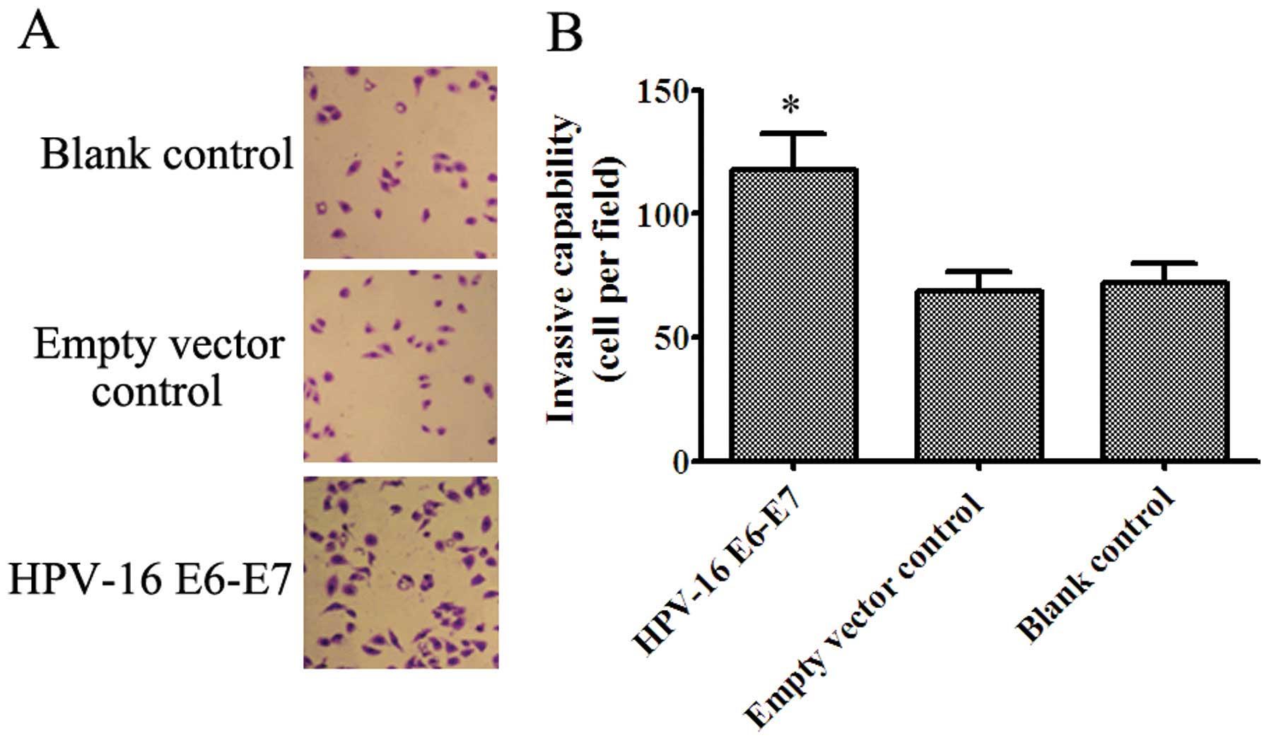 hpv 16 and squamous cell carcinoma oxiuri la copii de 6 ani