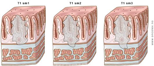 cancer de colon ges