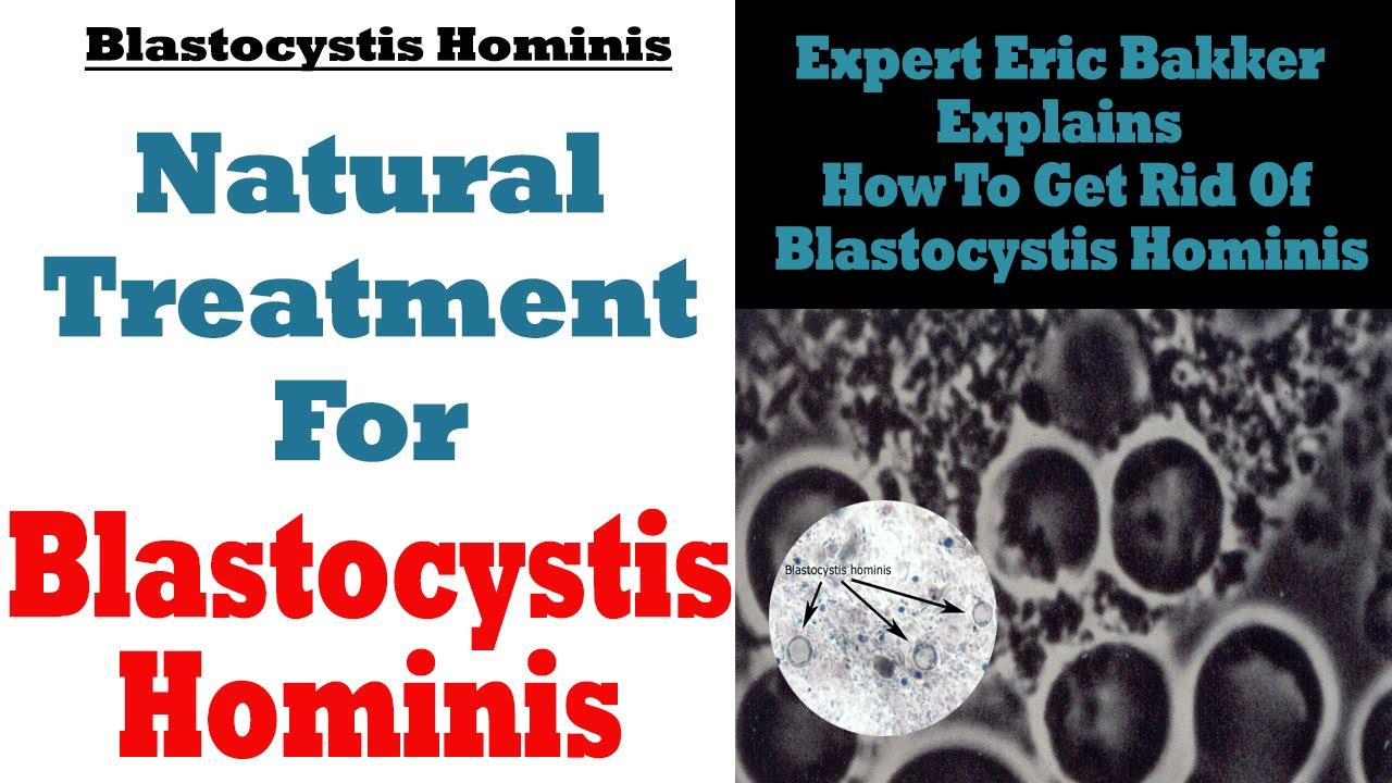 paraziti blastocystis hominis