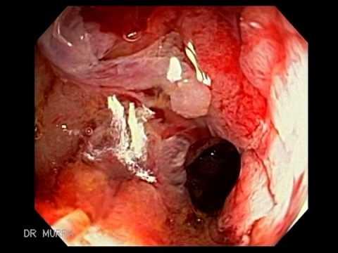 hpv related tumor cancer de piele mancarimi