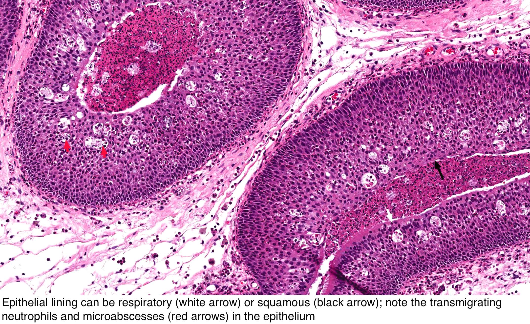inverted papilloma in nose hpv mouth cancer
