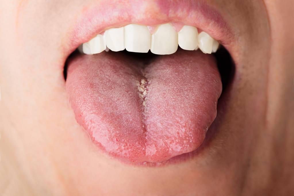 hpv warzen auf der zunge cancer de prostata hematuria