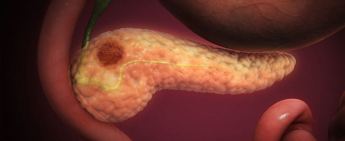 enterobius vermicularis risk factors