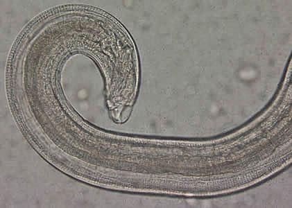 enterobius vermicularis je
