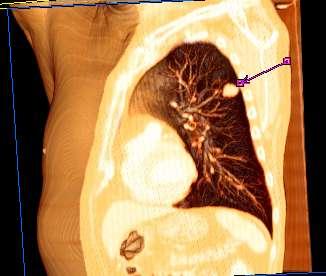 cancer pulmonar genetic papiloma humano de hombres