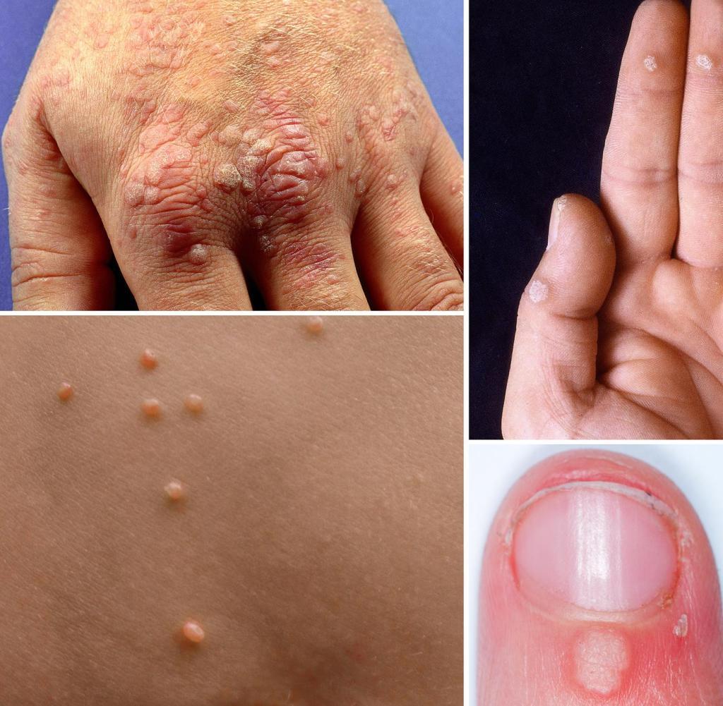 cancer de piele efecte