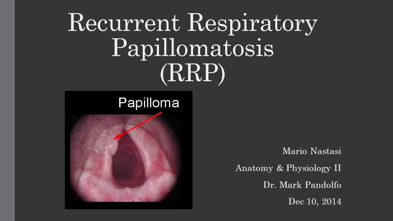 respiratory recurrent papillomatosis