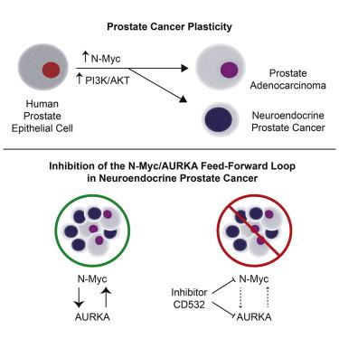 neuroendocrine cancer of prostate cancer gastric regim alimentar