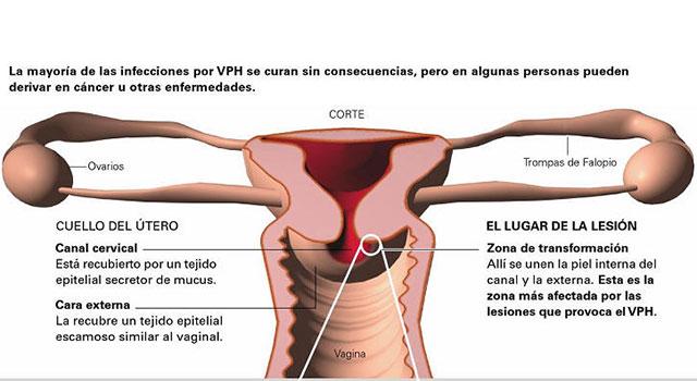 hpv en mujeres y embarazo papillomavirus humano vacuna