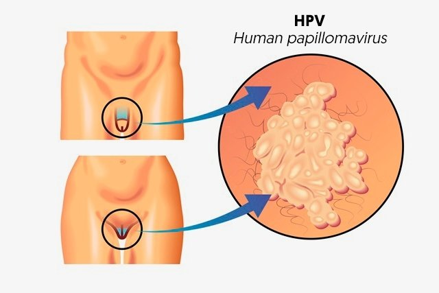 papiloma humano en la boca en mujeres