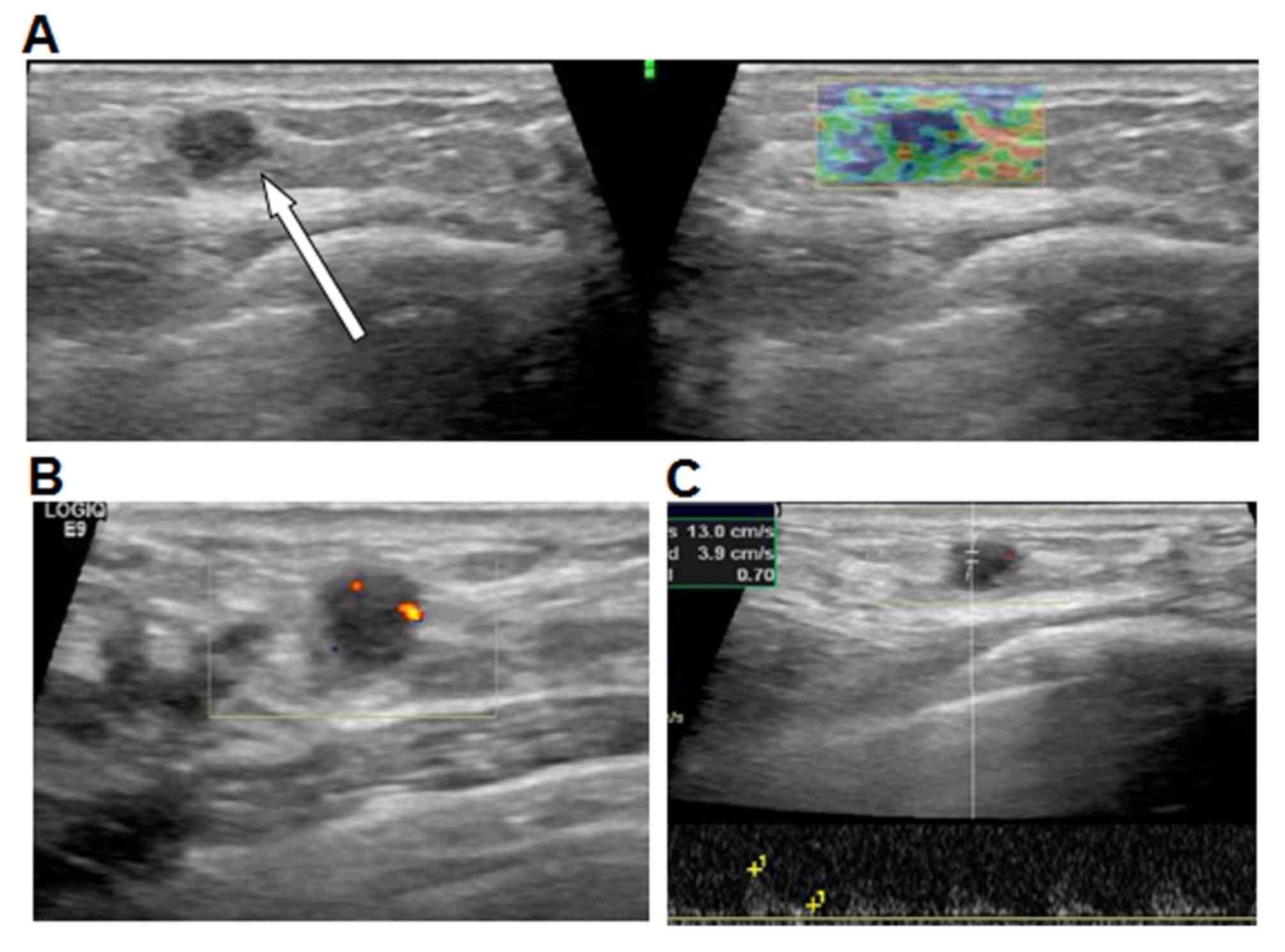 papilloma breast surgery recovery