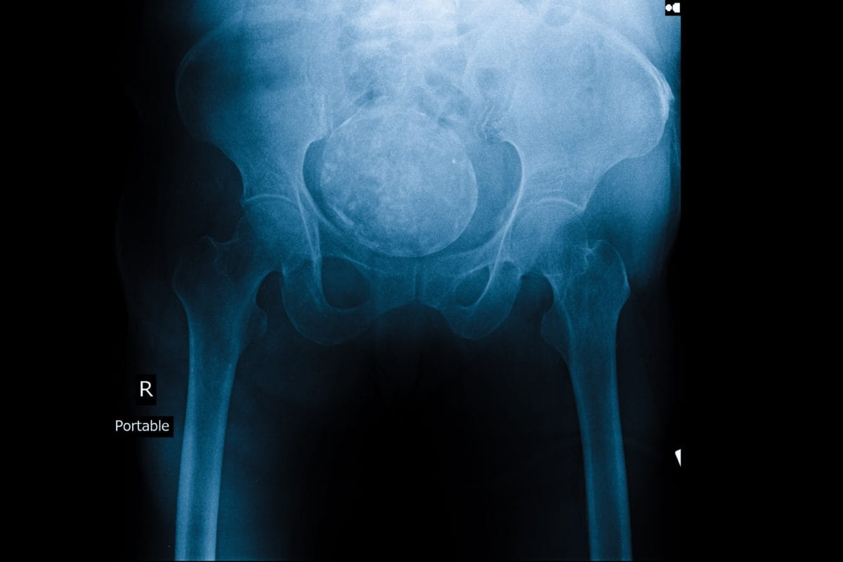 ovarian cancer kill you