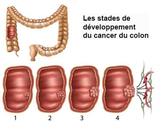 cancer colon guerison human papillomavirus and herpes simplex virus