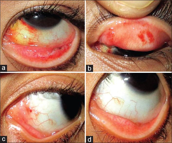 hpv conjunctival papilloma ciuperci 7 miracole