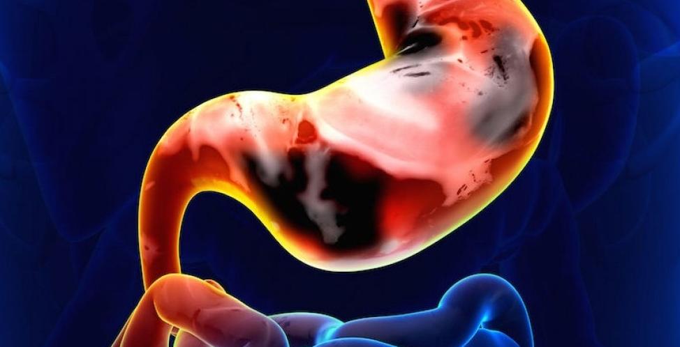 gastric cancer vsg