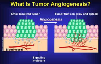 benign cancer of blood vessels