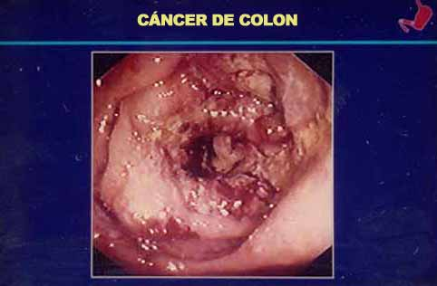 papilloma virus 51 simptome cancer in gat