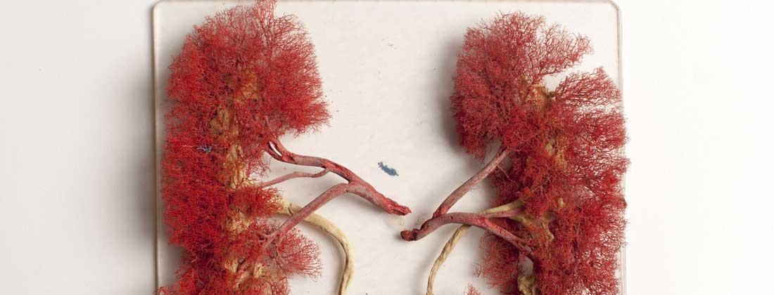 cancer renal stadiu 4 cancerul poate fi invins