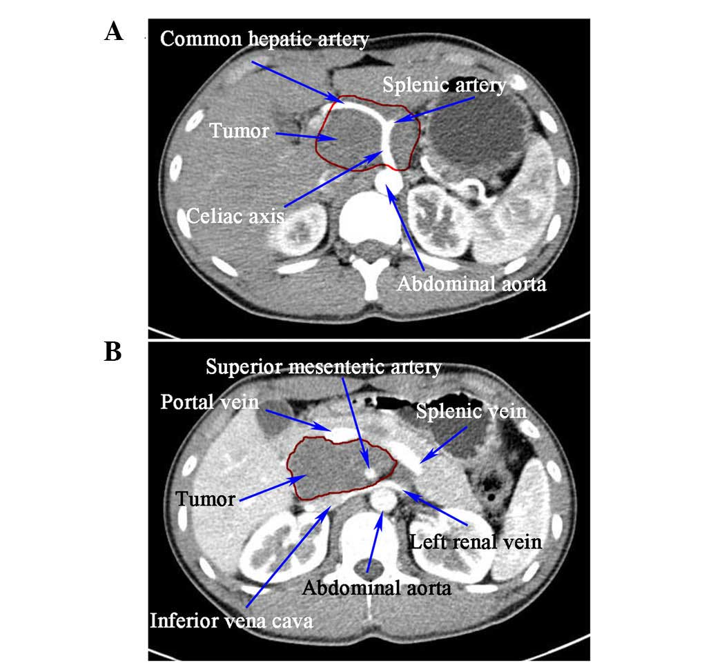cancer abdominal aorta cancer de prostata dados estatisticos