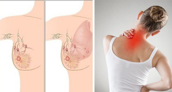 detoxifiere prin alimentatie cancer colon alcohol