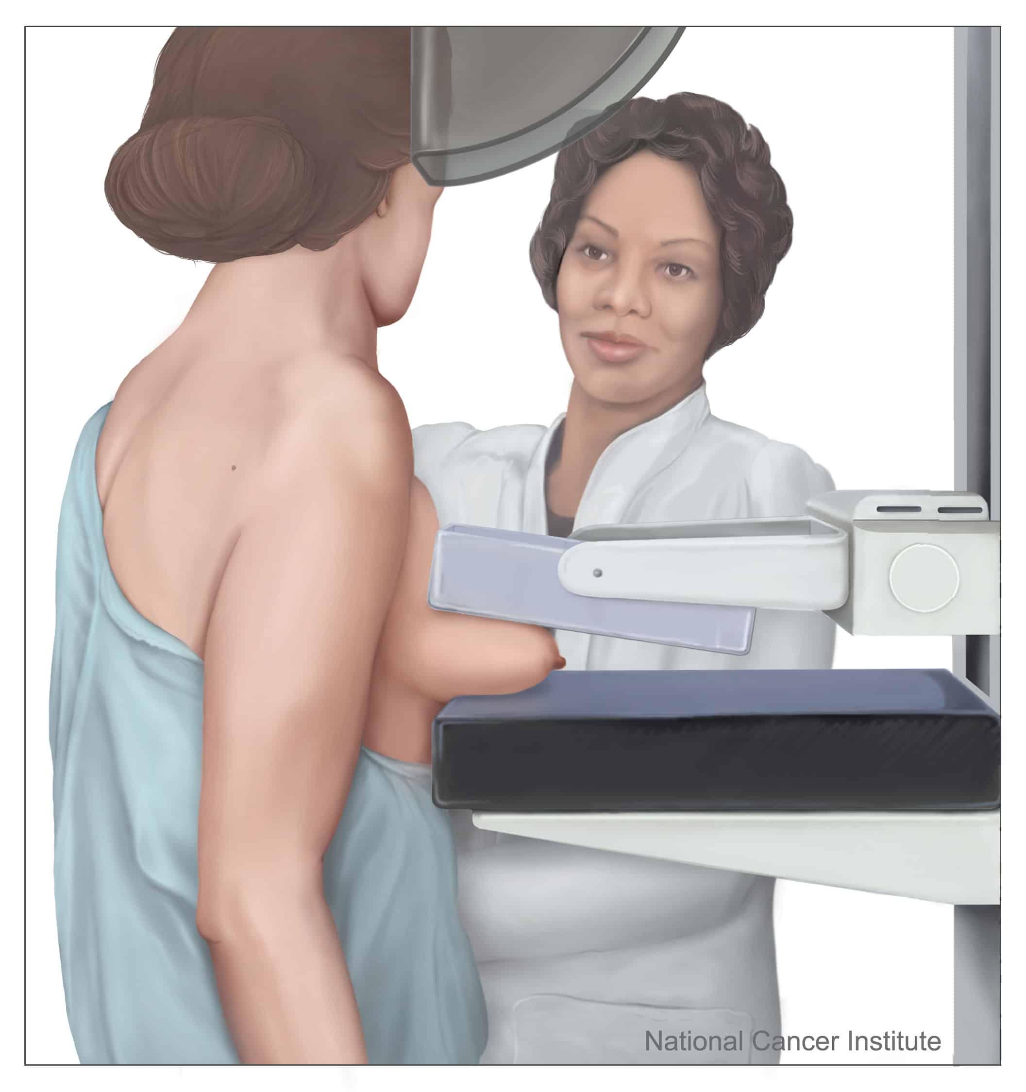 cancer cerebral caso clinico