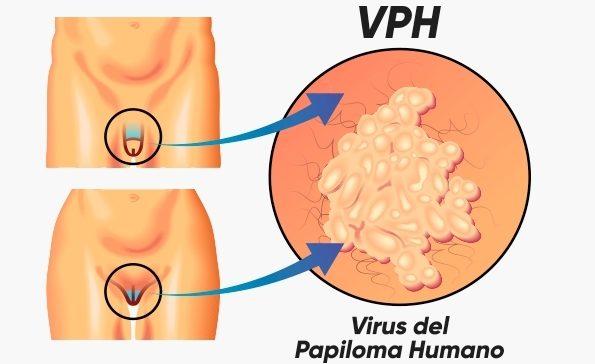 que es la papiloma humano y sus sintomas