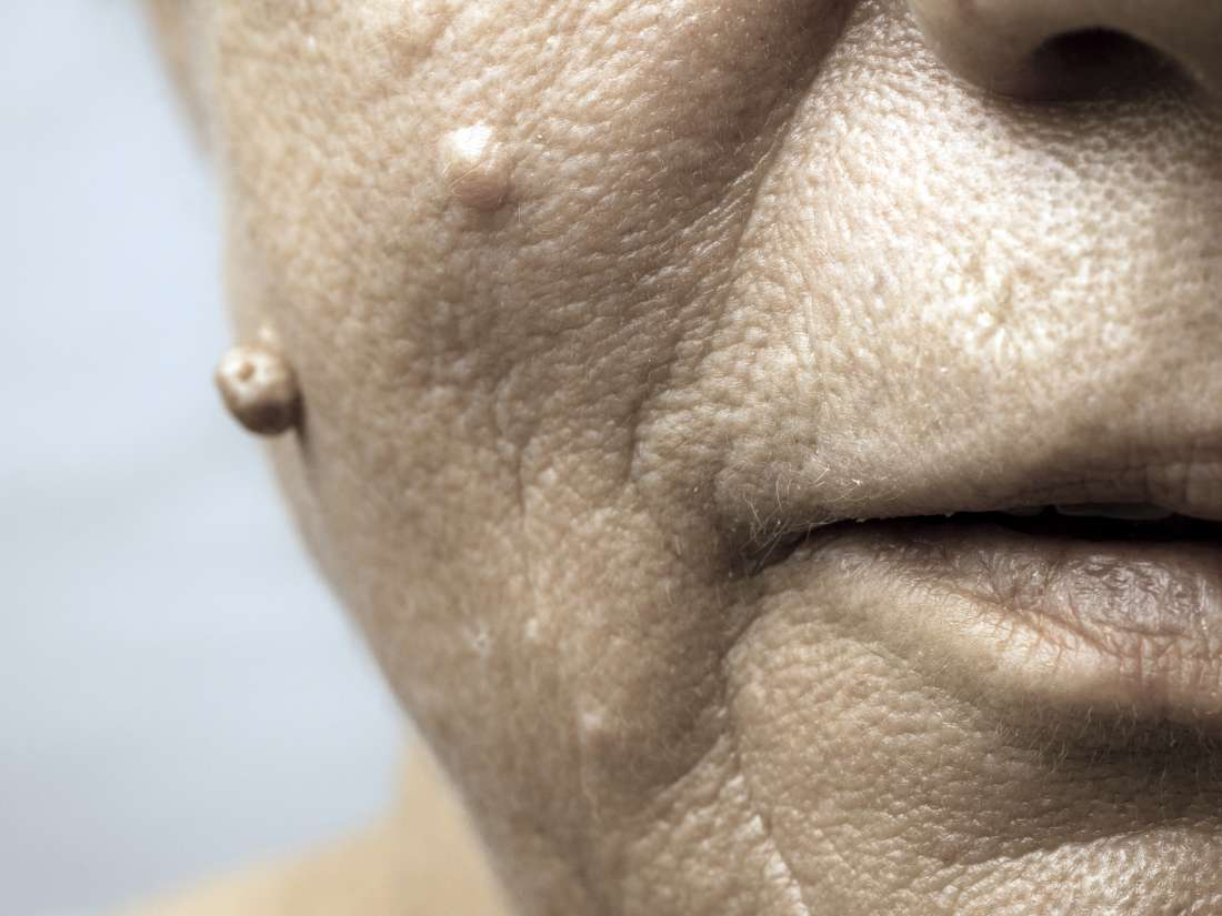 hpv warts on face