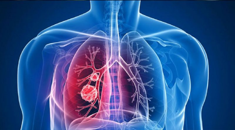 cancer pulmonar cu metastaze osoase