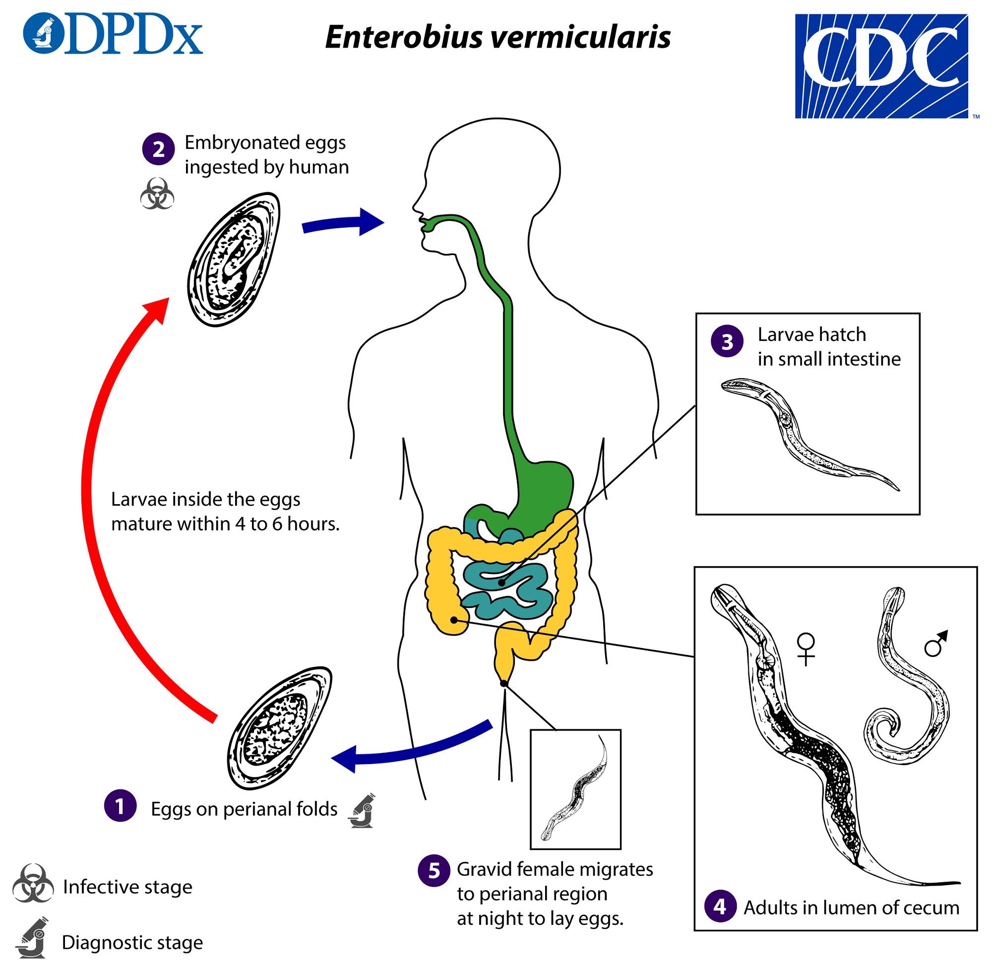 enterobius vermicularis causes what disease