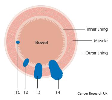 cancerul de prostata amg