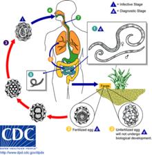 cancer pulmonar y sus sintomas