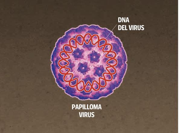 urine e papilloma virus papilloma of the eye treatment