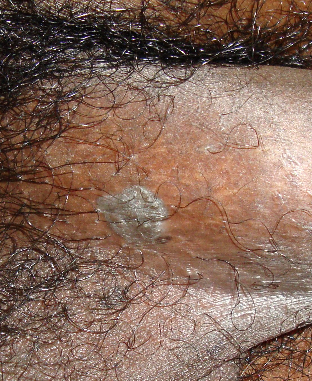 rimedi naturali per il papilloma virus