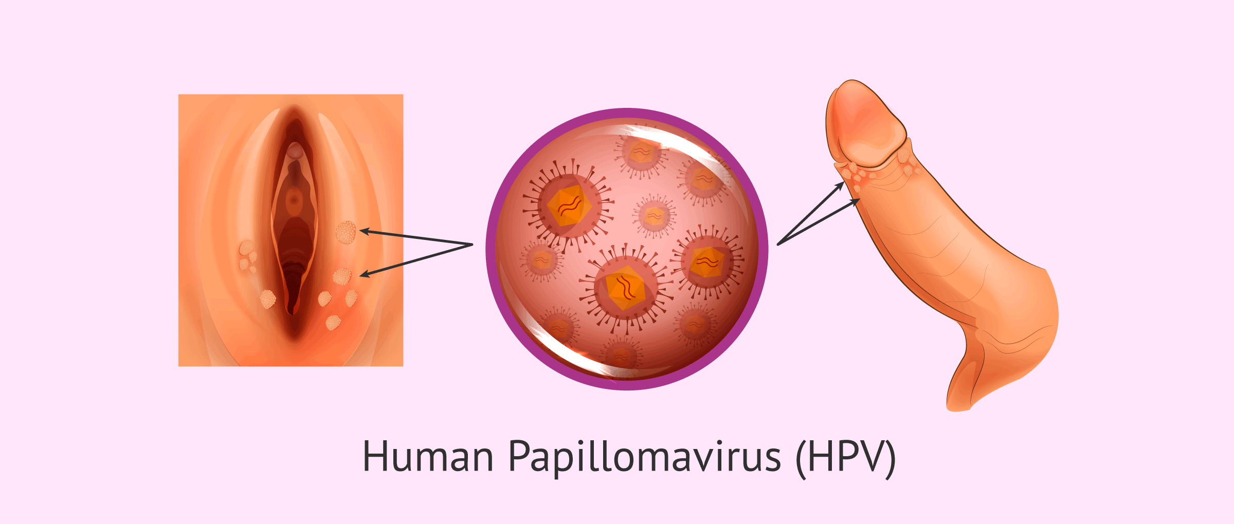 what is human papillomavirus (hpv) symptoms