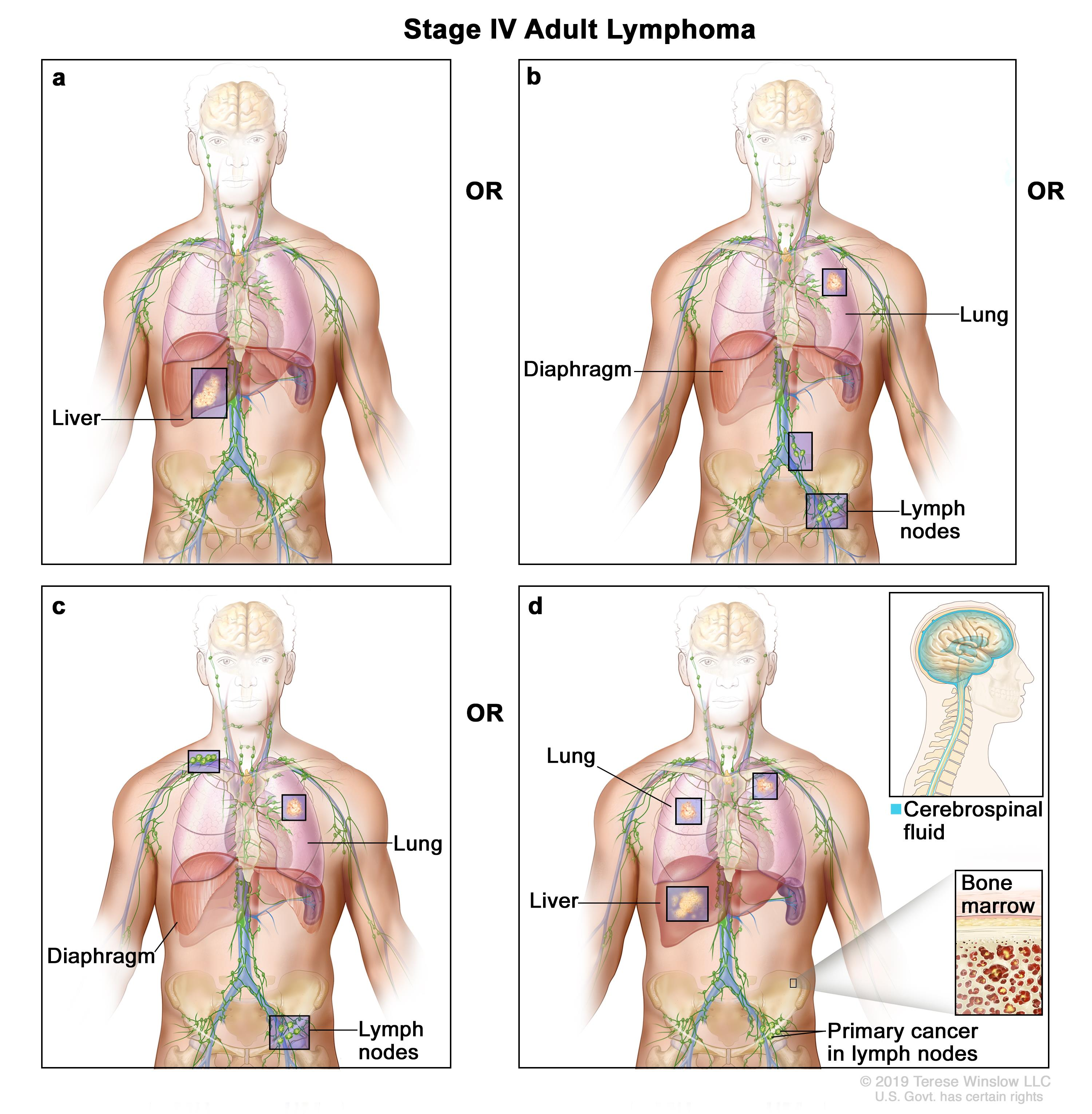 aggressive cancer in lymph nodes hpv virus rectal cancer
