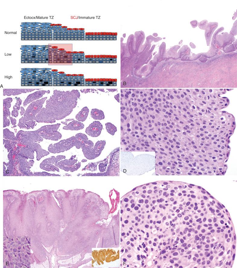 Cancerul de Col Uterin | Centru Oncologie Severin