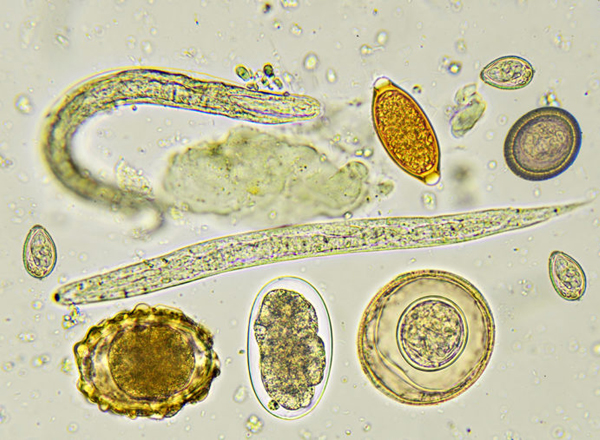 helminths vs parasitic worm sintomi tumore papilloma virus