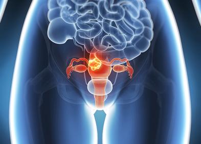 papillomatosis dermnet uterine cancer in elderly