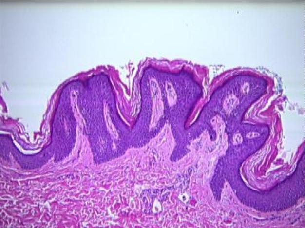 cancer de colon simptome incipiente cancer osos simptomatologie
