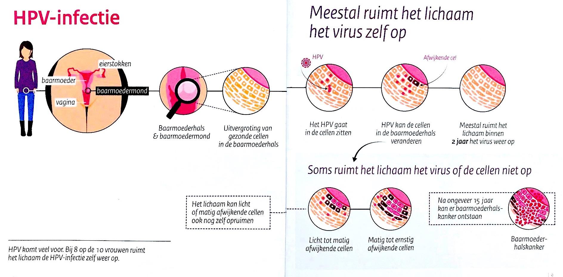 cancer testicular treatment human papillomavirus vaccination acog