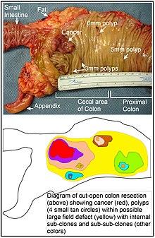 cancer la colon malign endometrial cancer osmosis