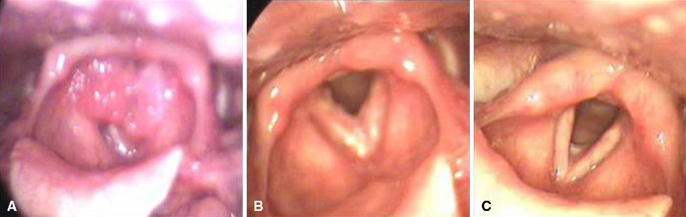 laryngeal papillomatosis surgery